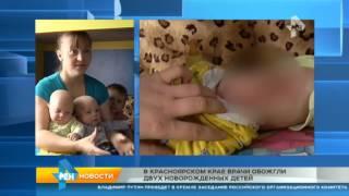 В Красноярском крае врачи обожгли двух новорожденных детей