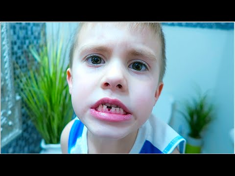 I SWALLOWED MY TOOTH!
