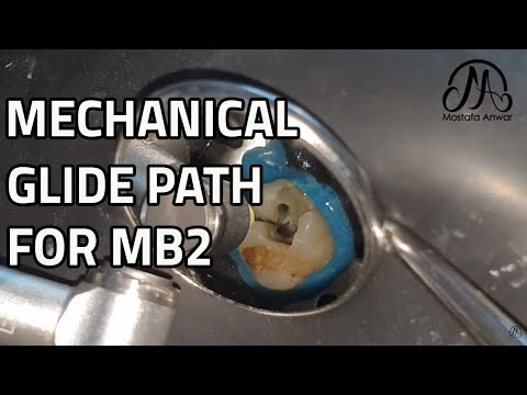 Mechanical Glide Path For MB2 Canal In Upper First Molar | EndoTactics