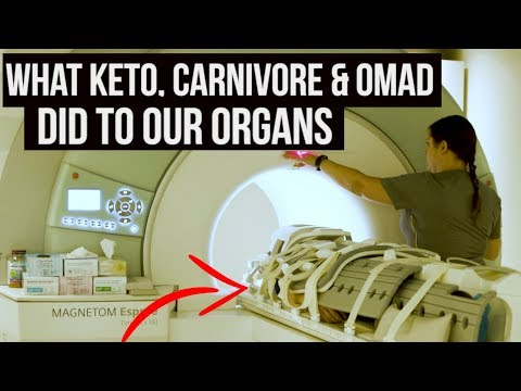 keto,-carnivore-&-omad-put-to-the-test-{full-body-mri-scan}