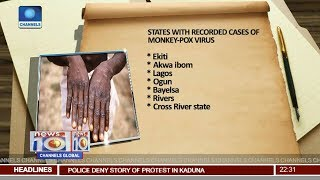 NCDC Confirms 21 Cases Of Monkeypox In Nigeria Pt 2 | News@10 |