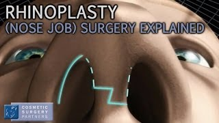 Rhinoplasty (Nose Job) explained - Cosmetic Surgery video animation Thumbnail