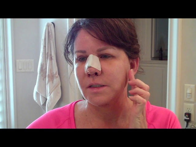 Dallas Deep-Plane Facelift, Rhinoplasty, & Upper Eyelid Recovery Video First Week