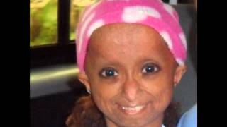 Rochelle Pondare a kid has PROGERIA ( Needs Your Help.)