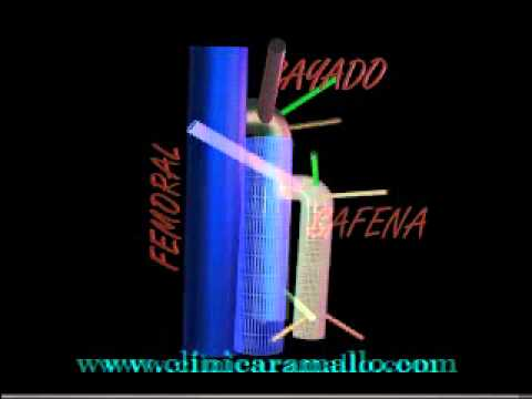 Anatomia en 3D (3 dimensiones) del Cayado de la Vena Safena Interna ...