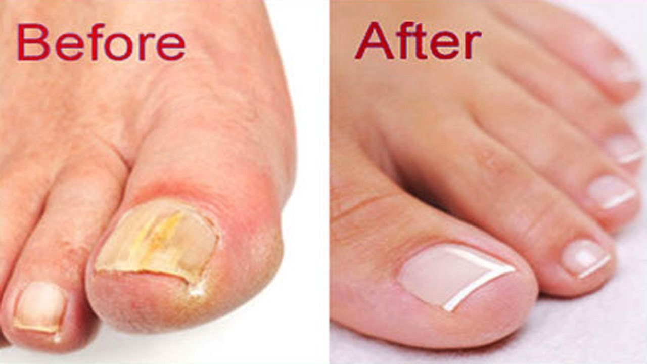 How to Get Rid of Toenail Fungus Fast and Naturally | Natural Cure ...