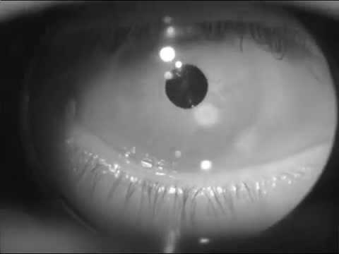 Eye tracker first video
