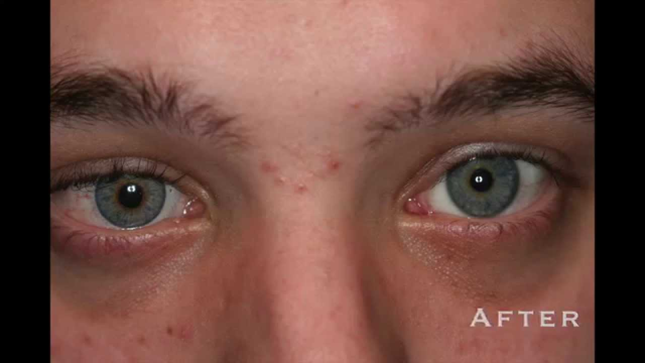 Custom Color Contacts Before And After Prosthetic Photos