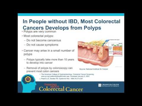 Thinking About Colorectal Cancer