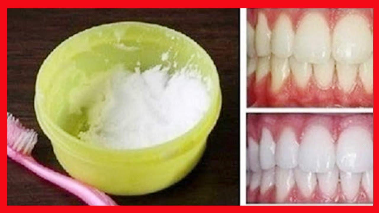 Dentes Brancos Em 3 Minutos Clareamento Dentario Caseiro Receita