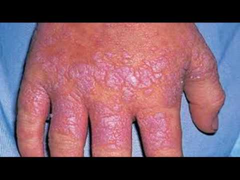 How To Treat And Cure Lichen Planus