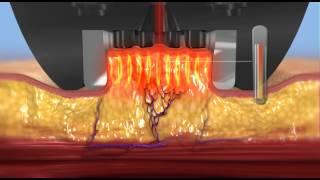 BodyFX Animation Thumbnail