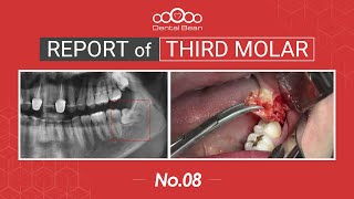 [ENG] Extraction of horizontal Lt. Mn third molar [#Dentalbean]