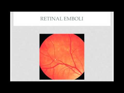 Ophthalmic Emergency: Central Retinal Artery Occlusion - Quick Review