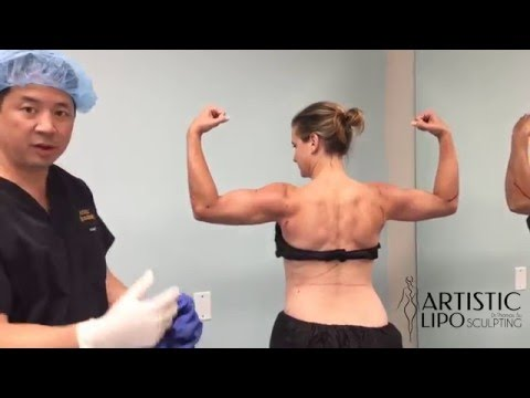 Celebrity Arms - High Definition Arm Liposuction - 5 | Expert Dr. Su