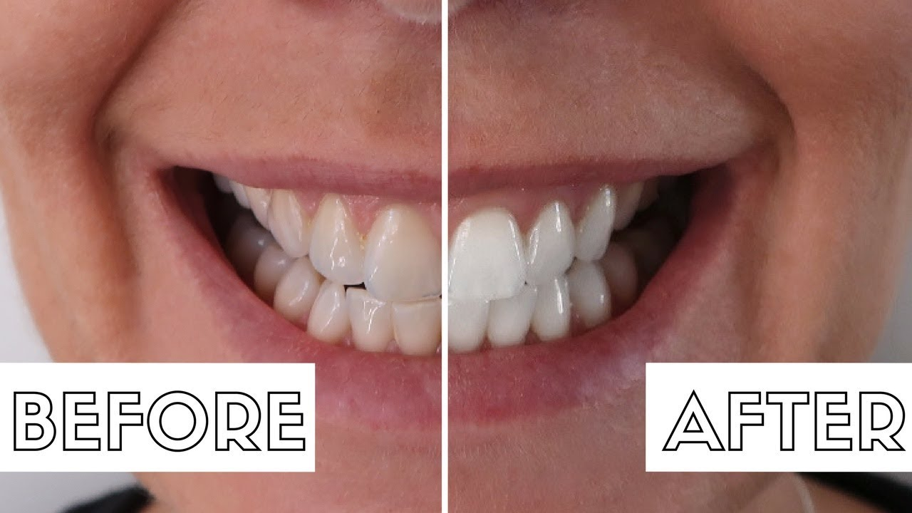 Brightest Smile in Boston | The Best Teeth Whitening