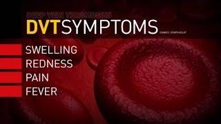 Y dvt tratamiento síntomas firma