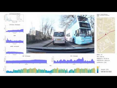 Driver Heart Rate Variability analysis using MATLAB & video representation of data