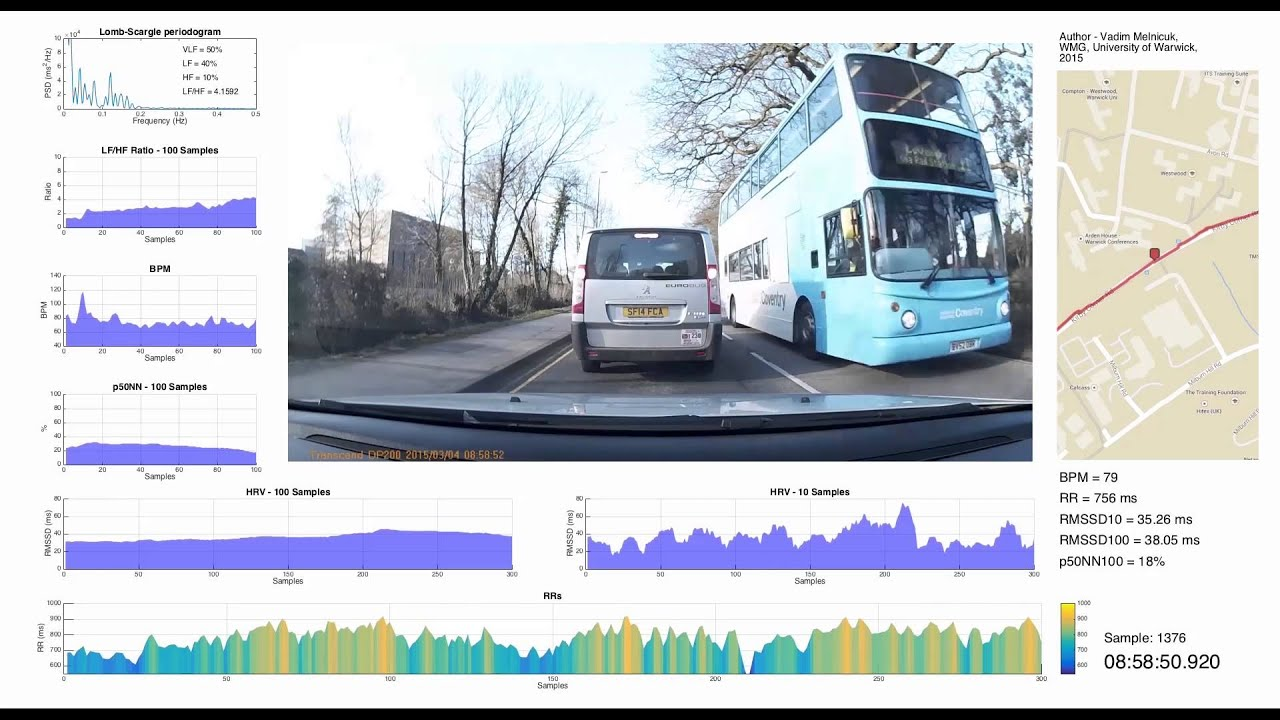 Driver Heart Rate Variability analysis using MATLAB & video representation  of data by Vadim Melnicuk