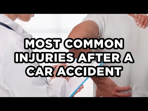 what-are-the-most-common-injuries-suffered-after-a-car-accident?---bachus-&-schanker