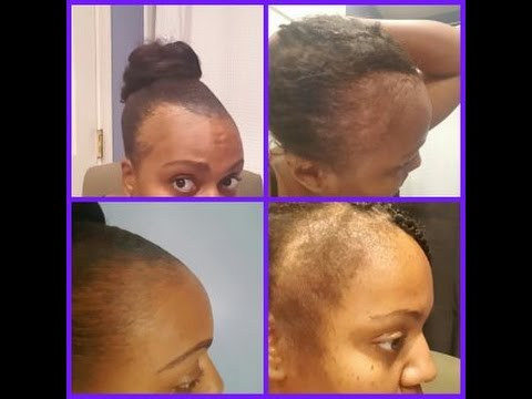 Bald Edges Grew Back In Less Than 10 Days Growth Challenge