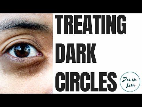 Dark Circles | Cause & Solutions