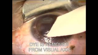 corneal tattooing