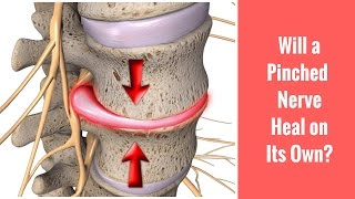 Will a Pinched Nerve Heal on Its Own? Discussed by St. Joseph, MI Chiropractor