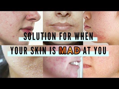 How To Calm Down Sensitive Skin • Irritation • Post-acne : Cica, Madecassoside Creams