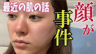 肌が事件。〜最近の肌の話〜 thumbnail