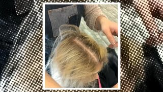 Have You Tried Scalp Exfoliation?