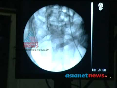 Angiography Test : Pulse 18th May  2013 Part 1പള്സ്