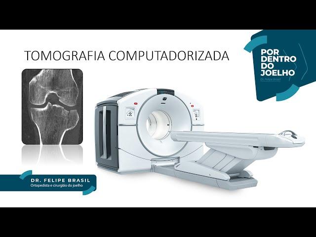 #2 - Tomografia Computadorizada do Joelho