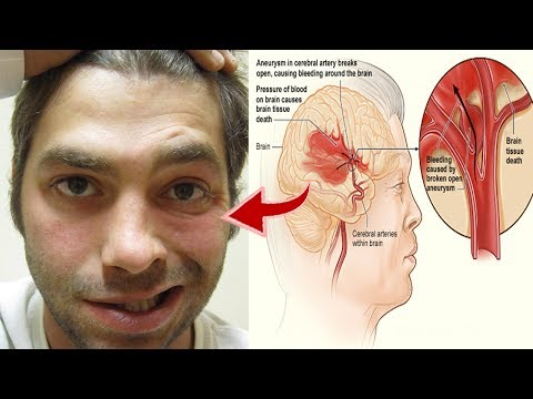 One Month Before Stroke, Your Body Will Send You These Warning Signs, Don't Ignore Them!