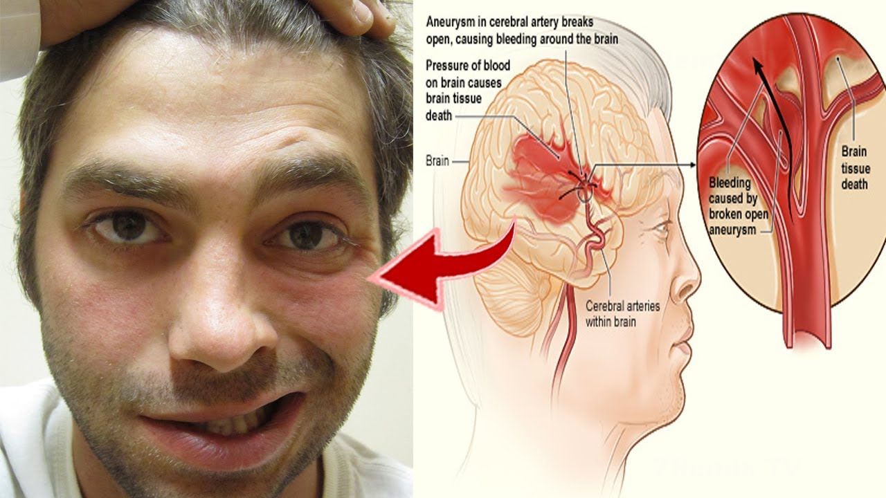 stroke symptoms weeks before  One Month Before Stroke, Your Body Will Send You These Warning Signs ...