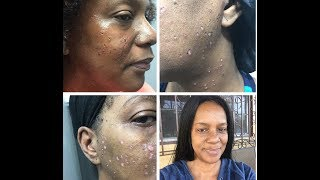 LASER MOLE REMOVAL (Full Procedure) and TALK THROUGH with the Doctor