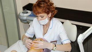 видео Уход за лицом после 30 лет: советы косметолога, лучшие маски