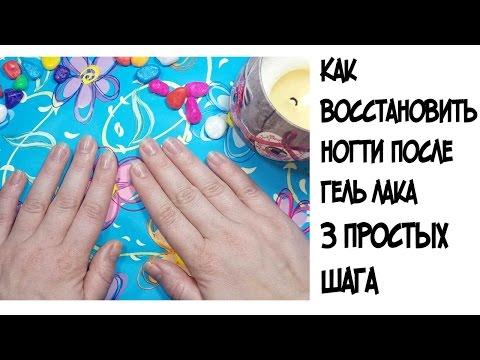 Вопрос: Как восстановить ногти после маникюра гель лаком?