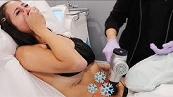 Freezing My Fat Off aka COOLSCULPTING