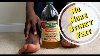 How To Get Rid Of Foot Odor| Apple Cider Vinegar