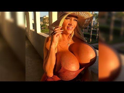 44-Jährige bläst sich ihre Brüste selbst auf, und hat nun ein gewaltiges Problem!