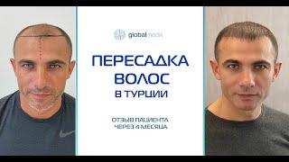 Пересадка волос в Турции Отзыв пациента через 4 месяца