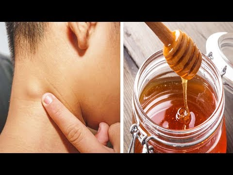 10 Hausmittel zur natürlichen Behandlung von geschwollenen Lymphknoten