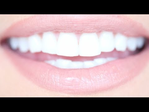 How To Get Really White Teeth For Cheap Kandee Johnson Youtube