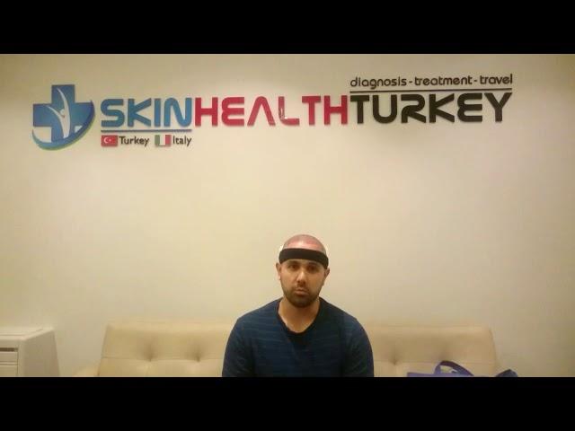 Trasplante Capilar Turquía - Testimonial Señor Francisco B. - Dra. Oyku Çelen/Skin Health Turkey