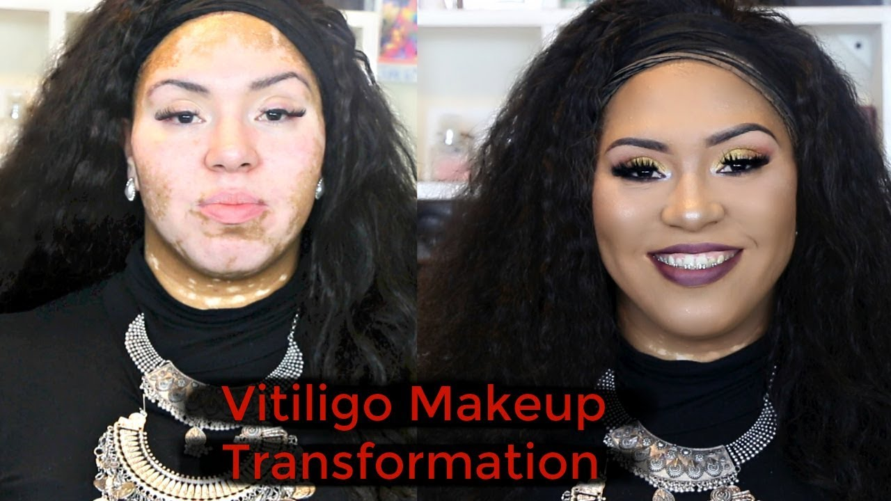 Vitiligo Makeup Tutorial Before & After Transformation MakeupbyDivaDoll