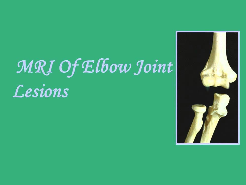 MRI ELBOW ANATOMY Dr/AHMED EISAWY - YouTube
