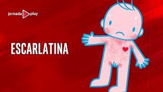 Escarlatina - detectan varios casos en Trelew