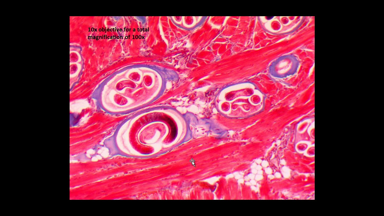 paraziták Thaiföldről galandféreg galandféreg test