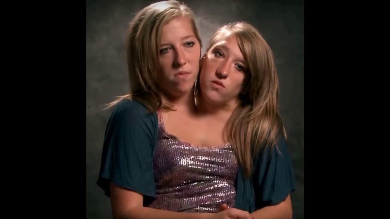 Famous Conjoined Twins - Abby And Brittany Hensel Are Now ...
